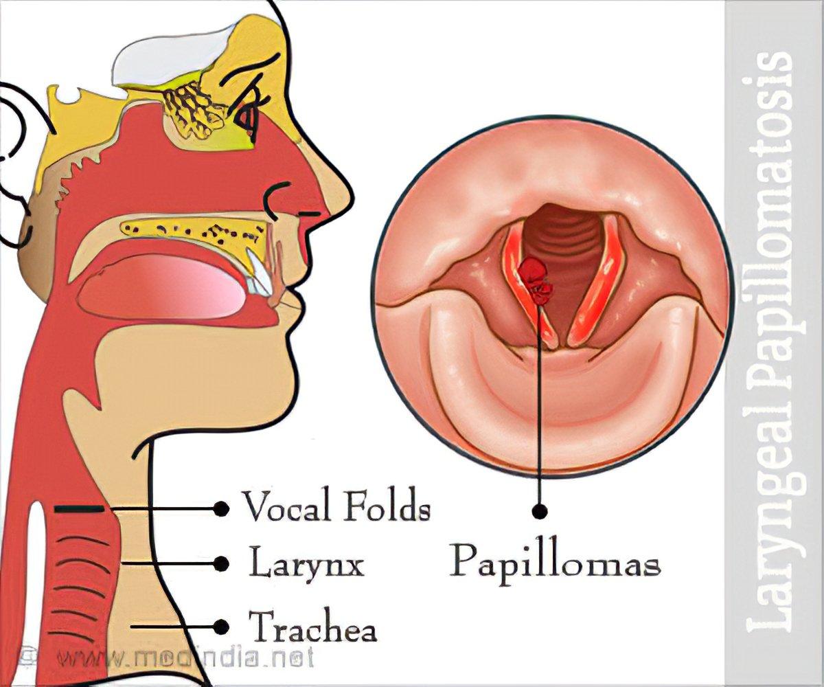 is laryngeal papillomatosis a std