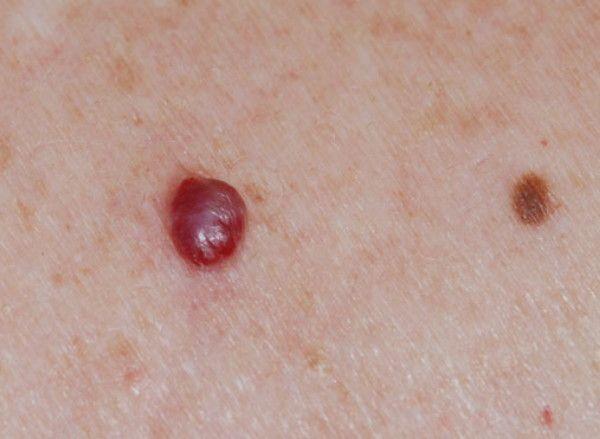 Analiza de sânge care depistează cancerul de piele