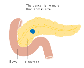 cancer cap pancreas simptome