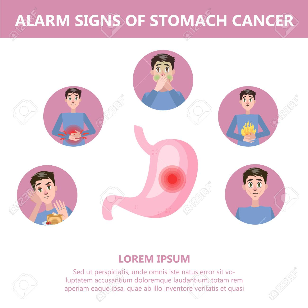 gastric cancer early symptoms