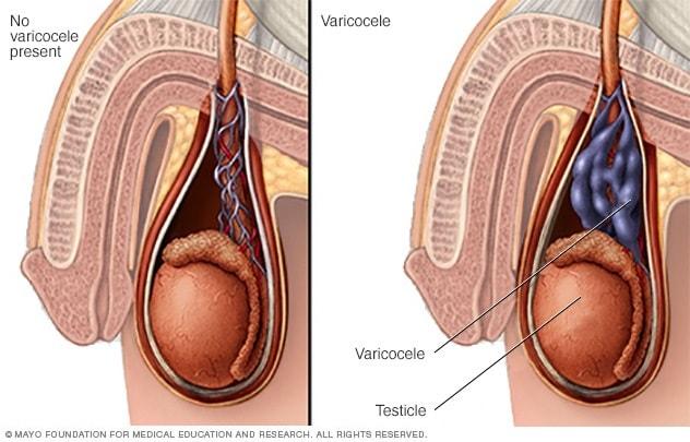 Varicoasă testicular ceea ce duce la