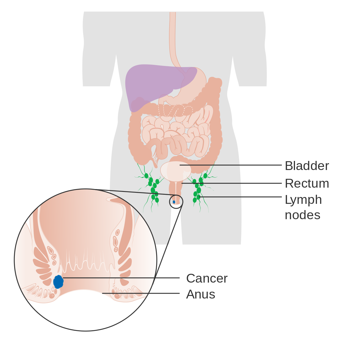 causes of rectal cancer hpv