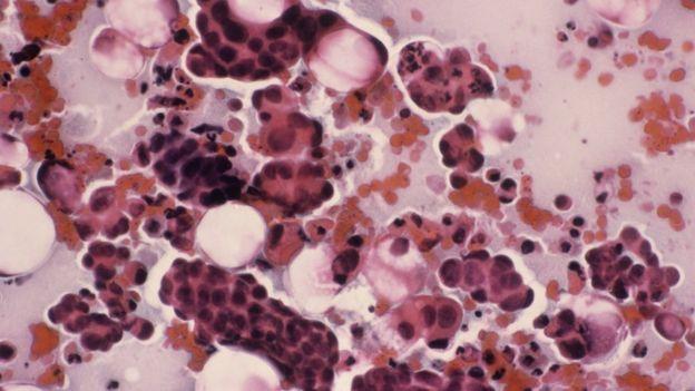 virus papiloma humano activo