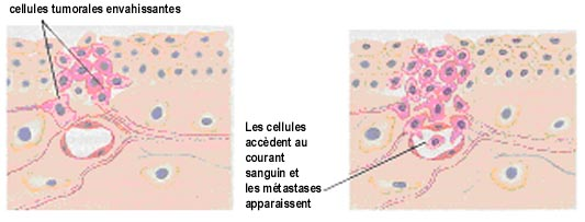 crevni paraziti kod stenaca sarcoma cancer articles