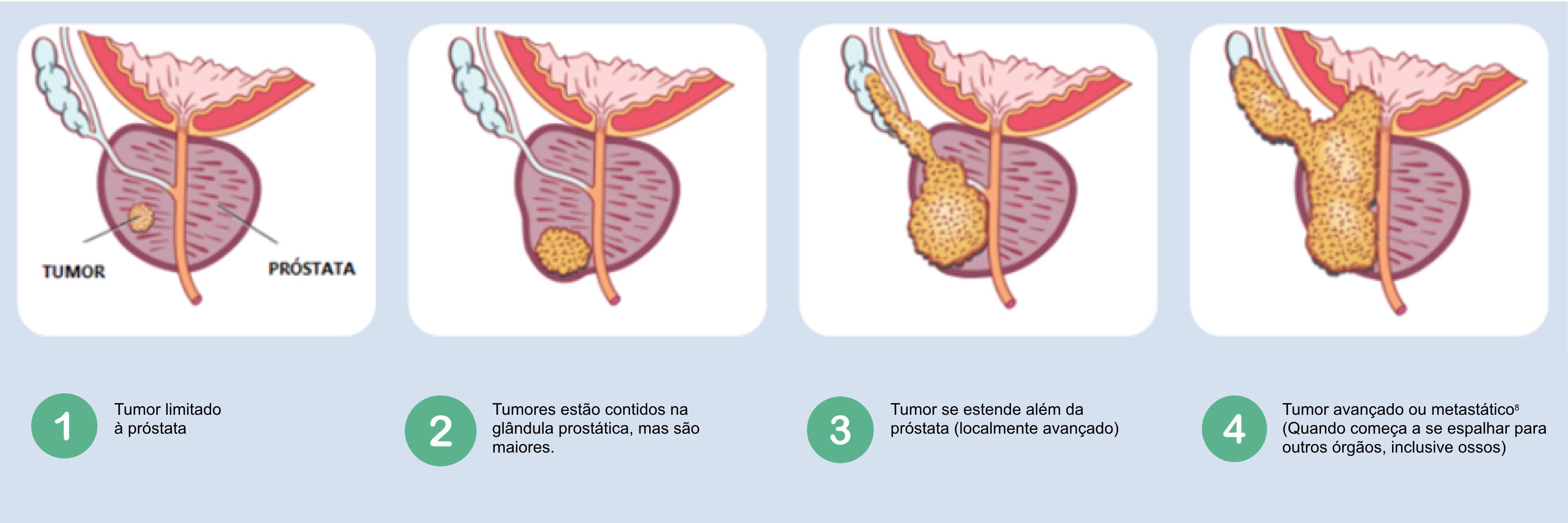 Hiperplazia benigna de prostata (adenom de prostata) - tratament