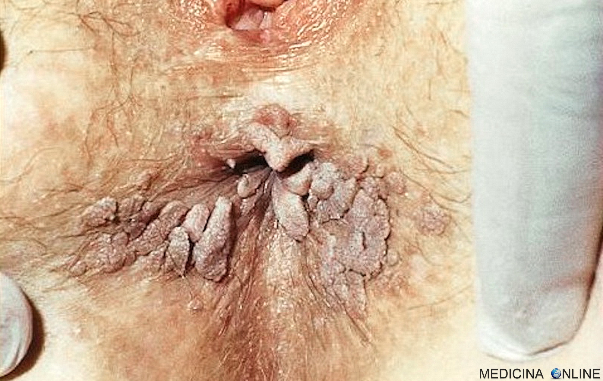 papilloma virus uomo rimedi
