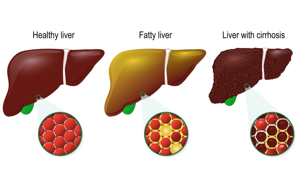 Așa arată ficatul unui bolnav de carcinom hepatocelular. Cum poți depista la timp această boală