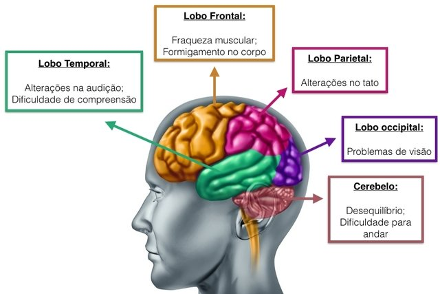 cancer cerebral tem cura