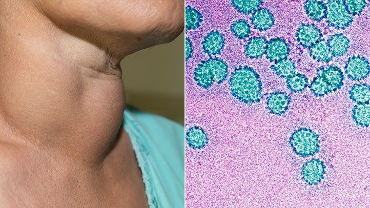 hpv transmitted by saliva