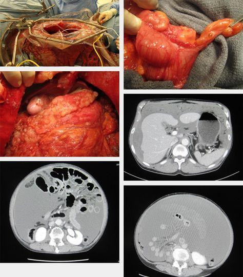 cancer pseudomyxoma peritoneal