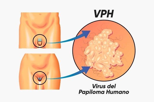 el virus del papiloma humano tiene sintomas