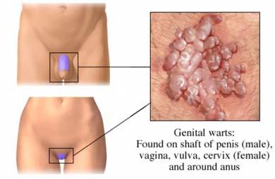 papiloma virus en el hombre