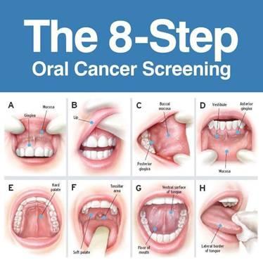 Screening pentru cancerul oral