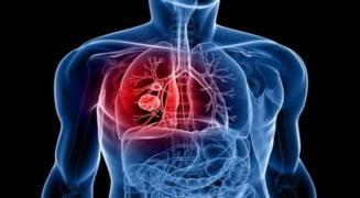 se vindeca cancerul de plamani