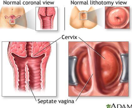 virus del papiloma humano verrugas genitales
