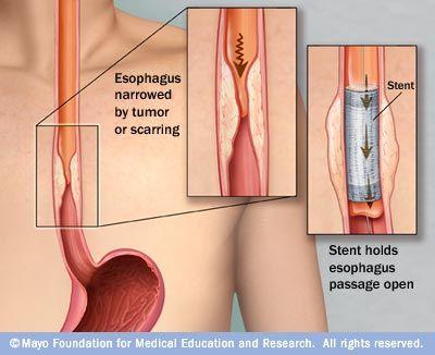 pancreatic cancer acid reflux papiloma virus bucal tratamiento
