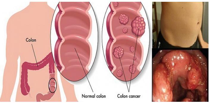 cancer la colon hpv vaccine cancer uk