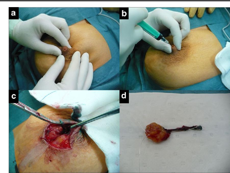 papilloma breast operation