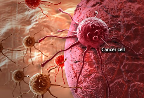 cancer in uter