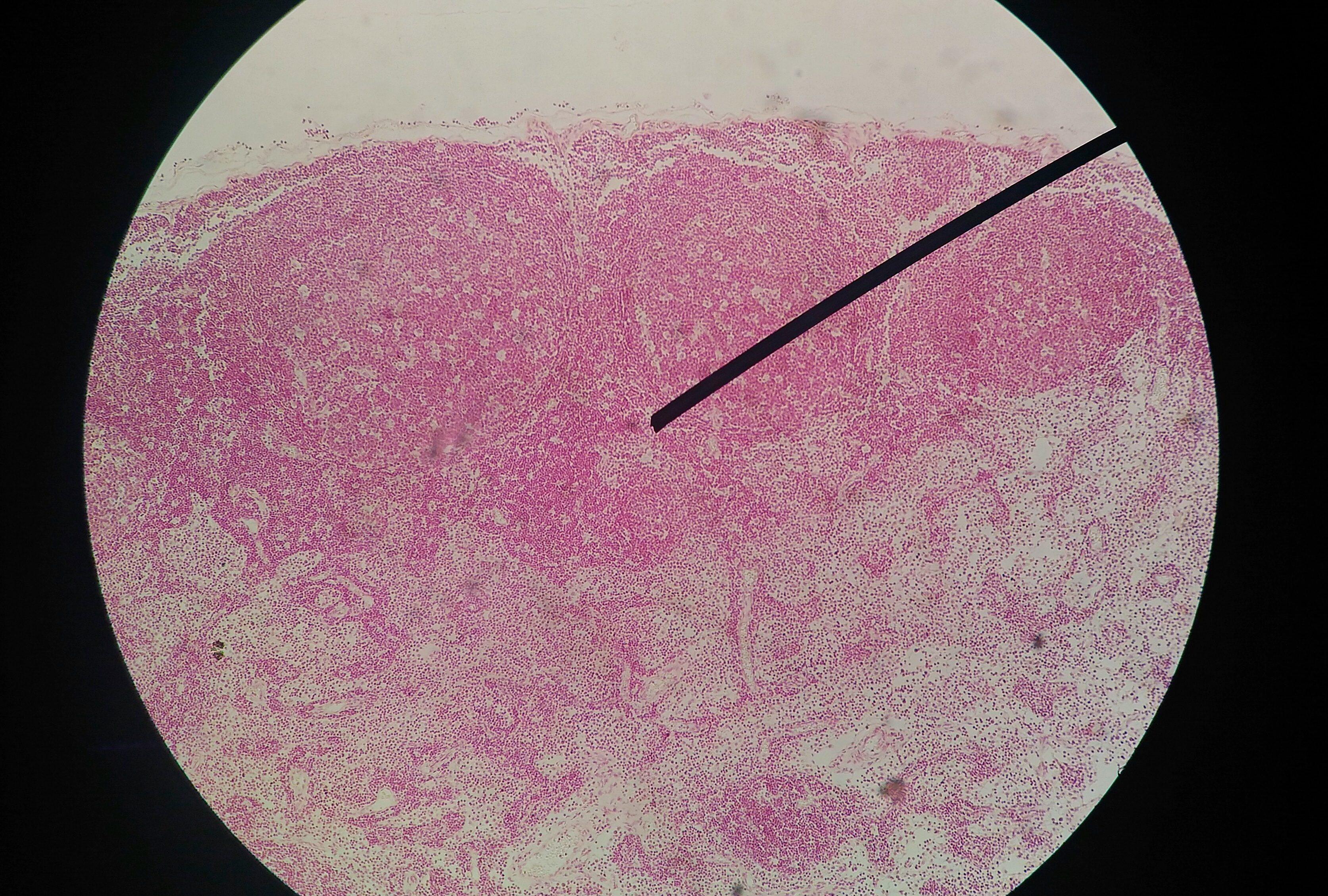 papilloma virus analisi del sangue