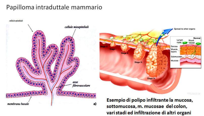 papilloma vescicale e maligno