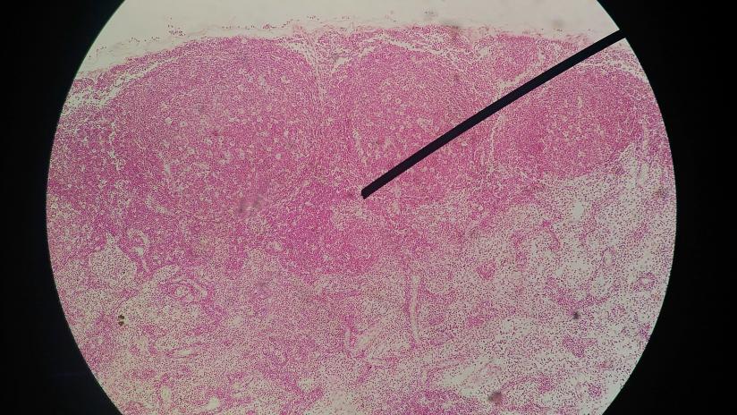 quanto sopravvive il papilloma virus pengertian papiloma adalah