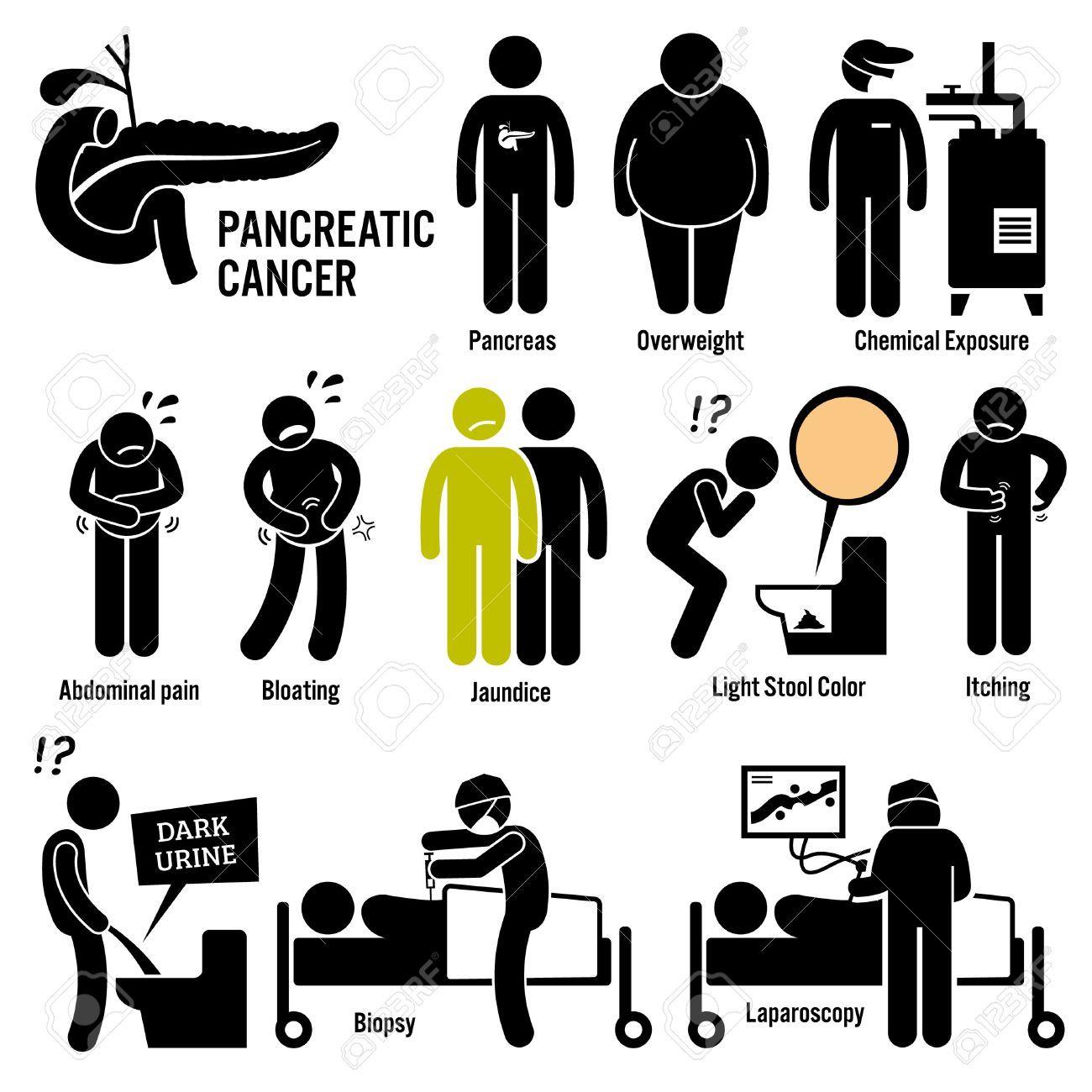 cancer de pancreas symptomes