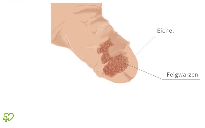 fibroma of papilloma