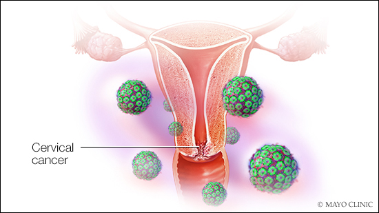 hpv early stage cervical cancer