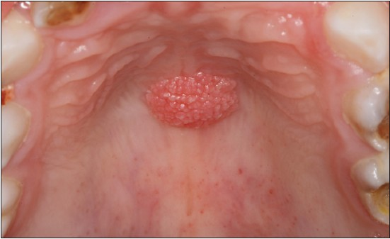squamous papilloma palate