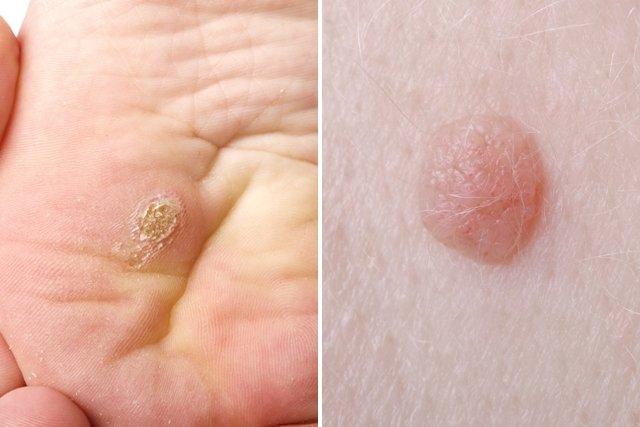 virus papiloma humano la cura papillomavirus et douleur articulaire