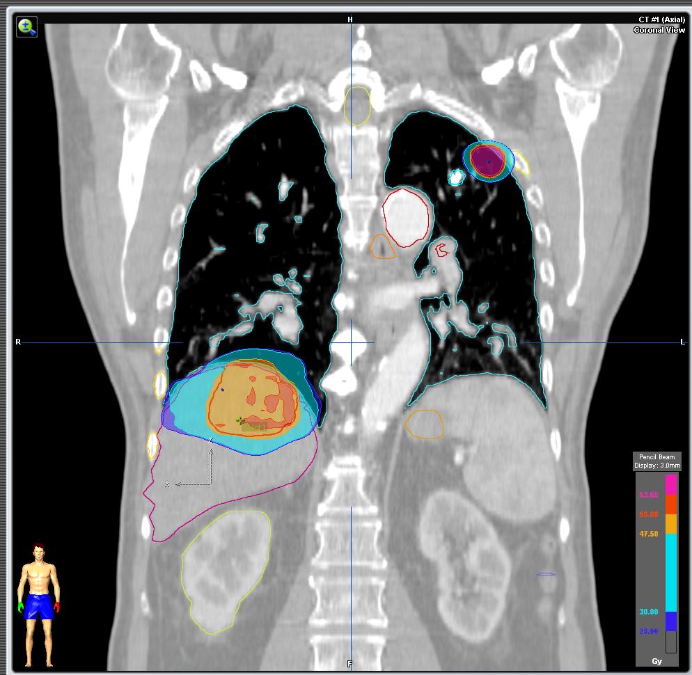 cancer pulmonar higado