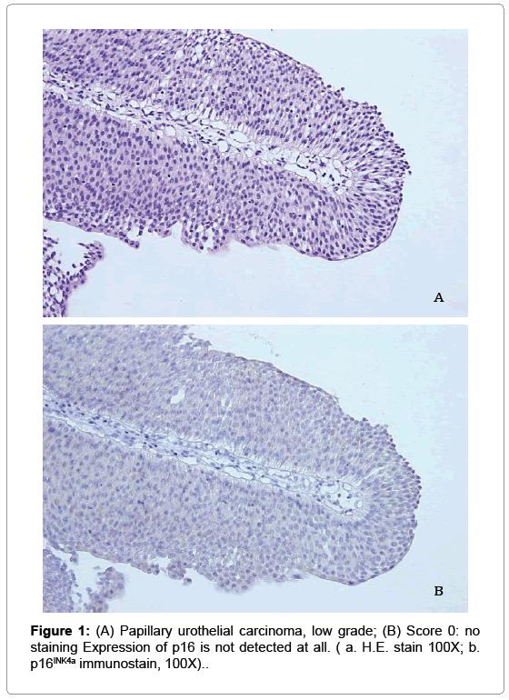 Tumorile vezicale