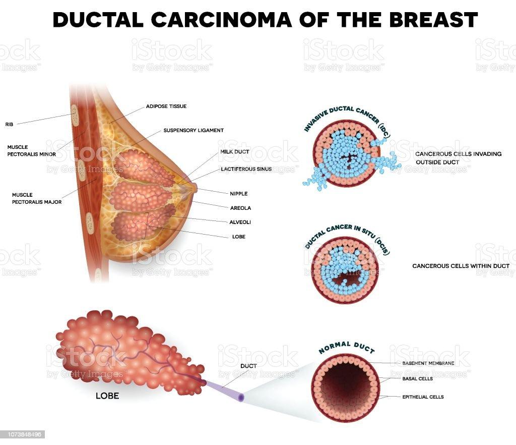 Tipuri de cancer primar de san - Donna Medical Center