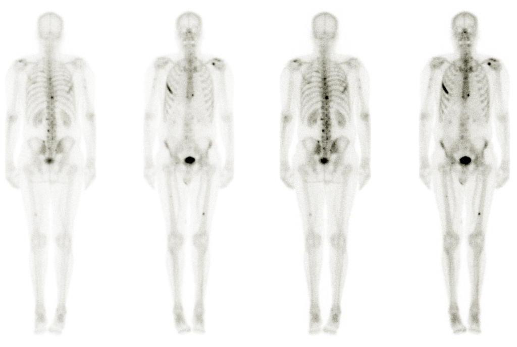metastatic cancer of the bone