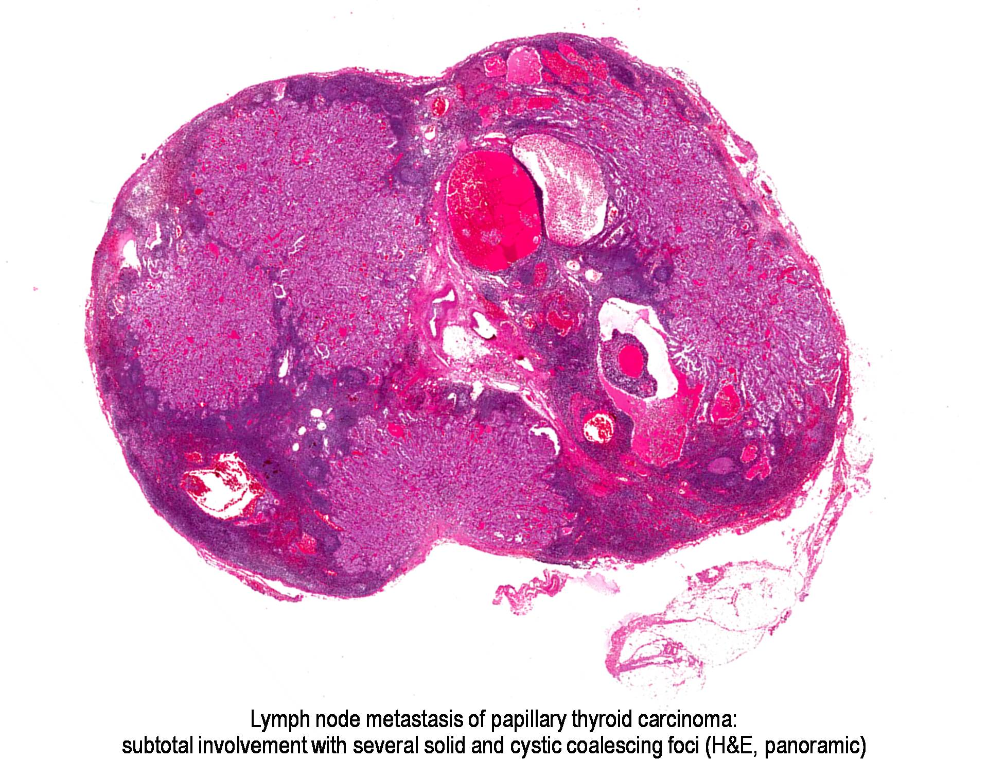 hpv warts on genital squamous papilloma histology skin
