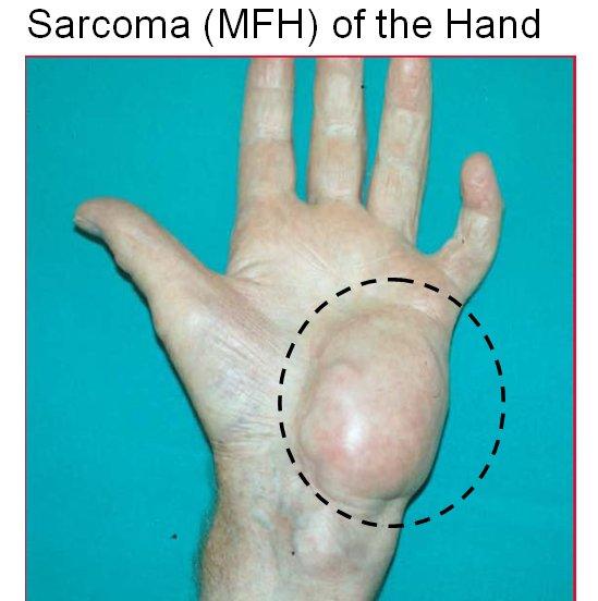 Sarcom - ce înseamnă Sarcom - definiţie completă