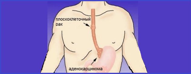 cancer esofagian la tineri