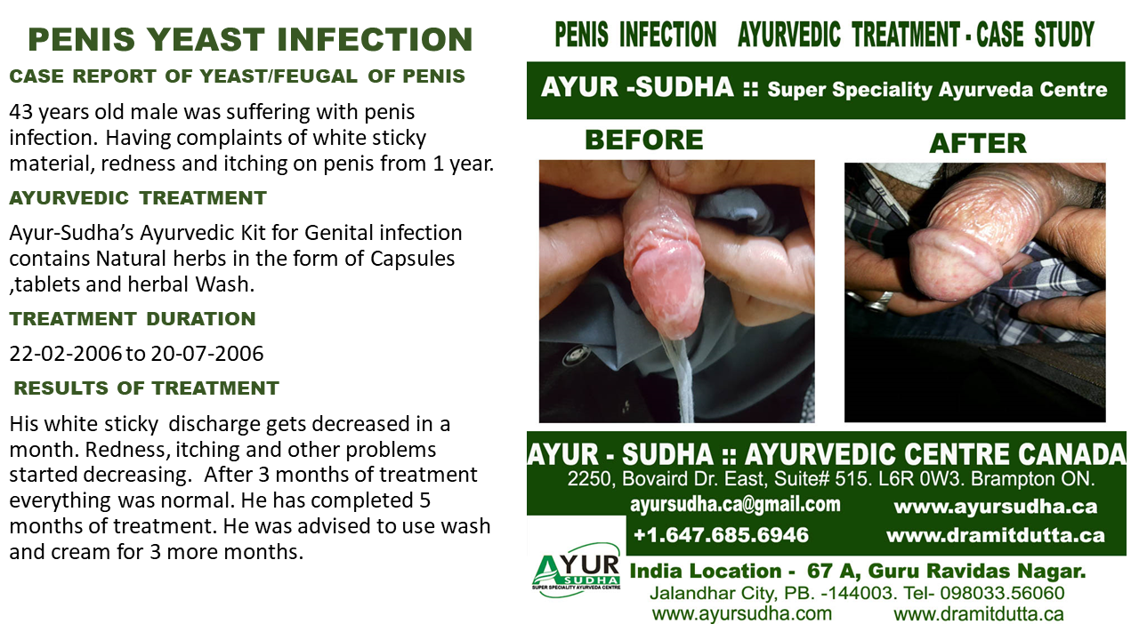 hpv treatment ayurveda rectal cancer with prostate invasion