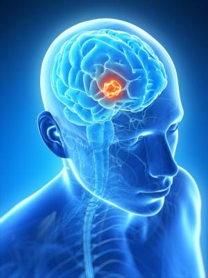 cancer cerebral en ninos
