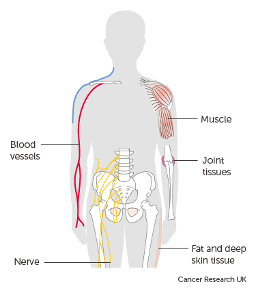 cancer of sarcomas zentel pt oxiuri