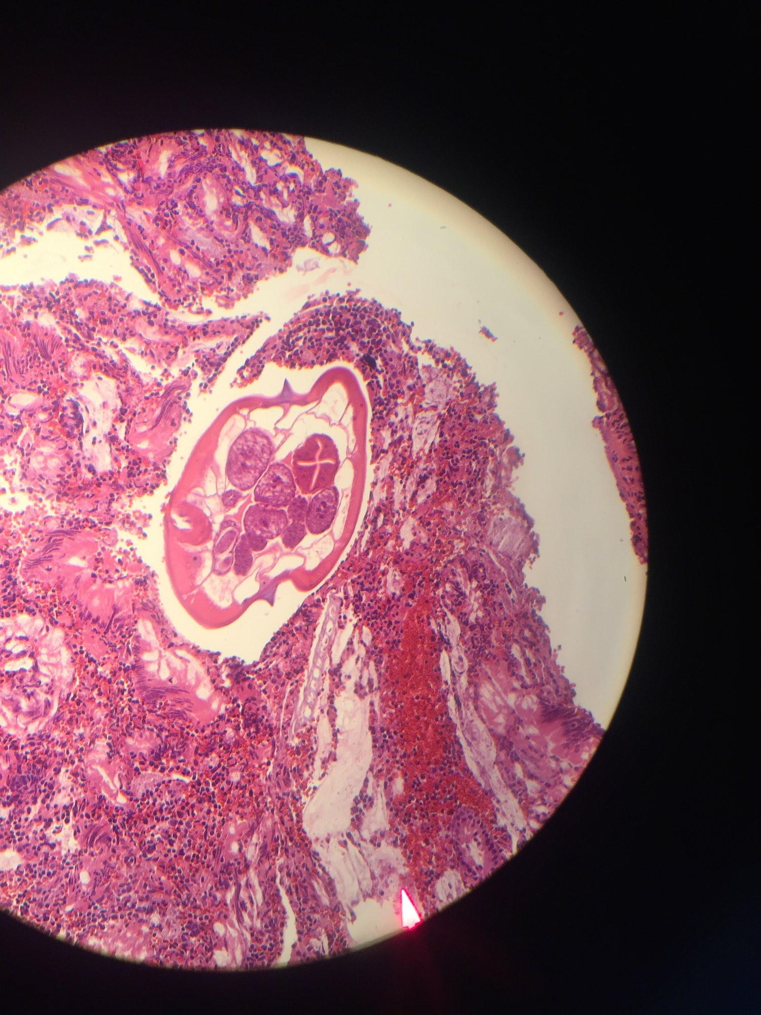 enterobius vermicularis histology cancer de san blog