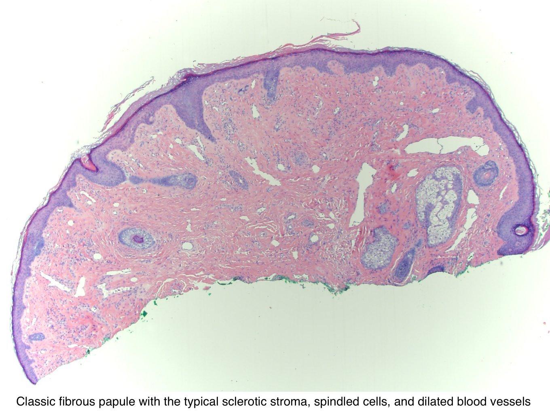 enterobiasis epidemiologia hpv impfung cervarix
