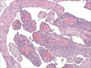 papillary thyroid carcinoma treatment options