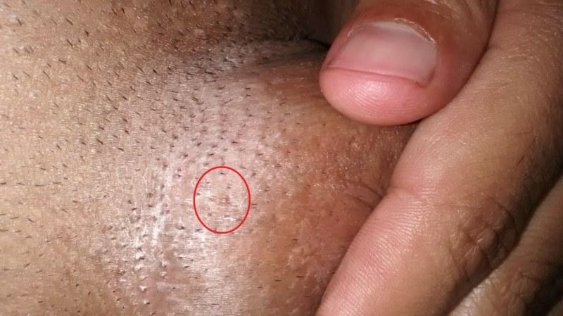 hpv genital warts male symptoms