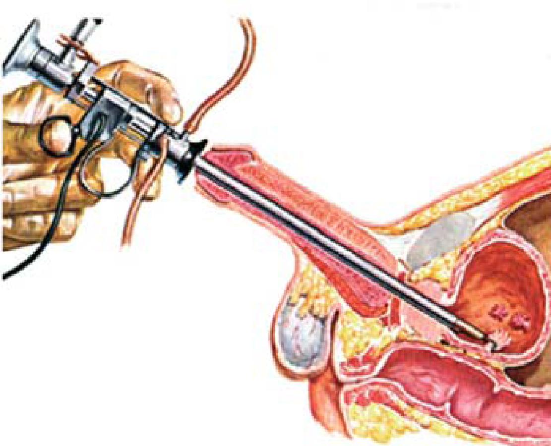 ovarian cancer epithelial