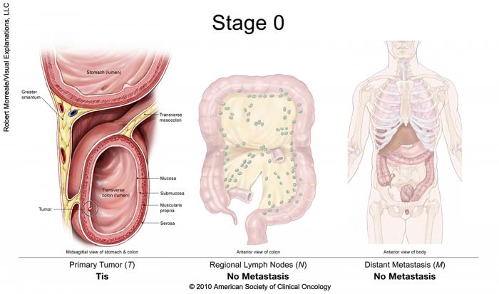 rectal cancer with lymph node involvement