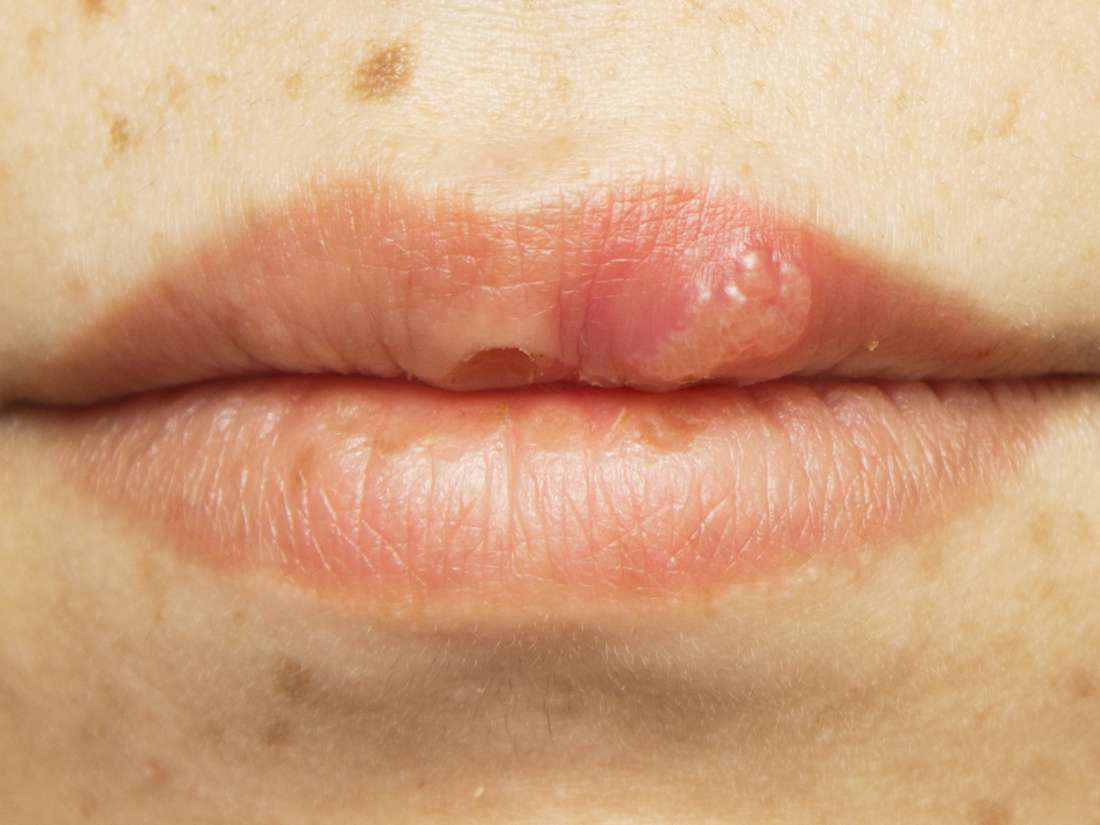 human papillomavirus infection lips