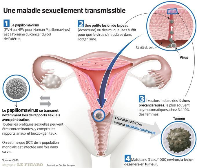 vaccination papillomavirus femme