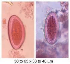 Amprenta anala - Enterobius vermicularis (oxiuri)